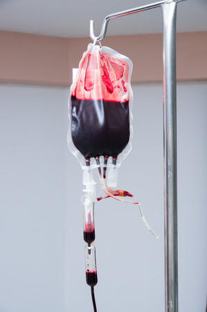 transfusion: Blood transfusion in hospital white wall background show blood drip.