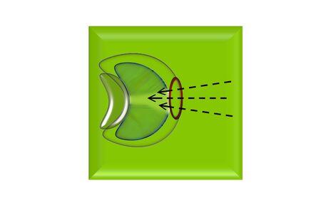 Eye surgery inlay photo