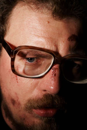 sores: Man on glass with small sores on face