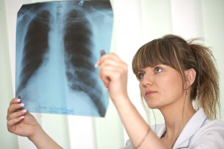 Female doctor looking at a lungs or torso xray photo