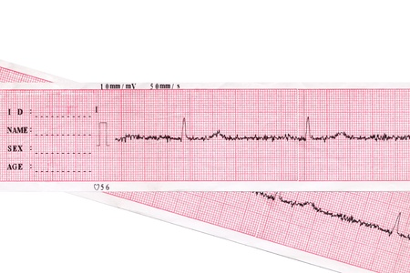 Heart. Medical inspection and health. Heart analysis scheme. Cardiogram  photo