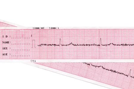 Heart. Medical inspection and health. Heart analysis scheme. Cardiogram  Standard-Bild