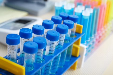 Test-tubes in a laboratory. Tools for research Stock Photo
