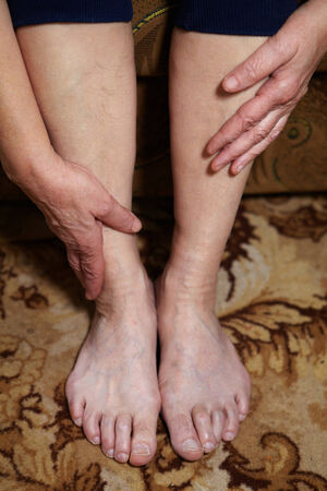 foot pain: Legs of senior woman. Feet care and massage