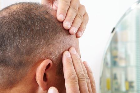 baldness: hombre de mediana edad preocupado por la p�rdida del cabello. Calvicie Foto de archivo