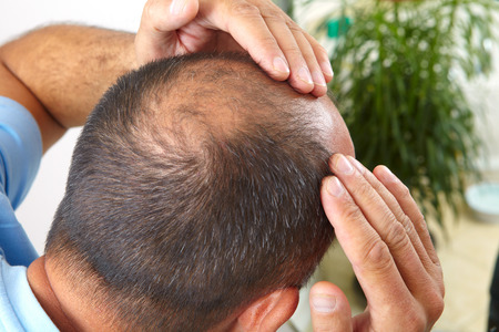 Middle-aged man concerned with hair loss. Baldness