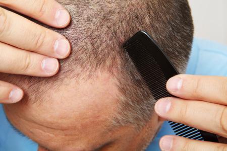 calvicie: hombre de mediana edad preocupado por la p�rdida del cabello. Calvicie Foto de archivo