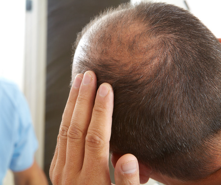 health concern: Middle-aged man concerned with hair loss. Baldness