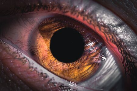 Redness of the eyes in humans. Inflamed conjunctiva of the eyeball. Fury in the eyes of a man. Stock Photo