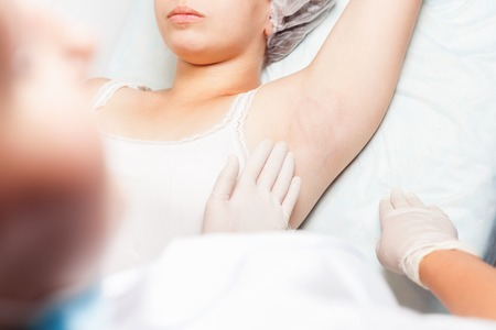 Professional woman at spa beauty salon doing epilation armpits using sugar - sugaring. You can see her smooth and hair free armpits after hair removal Stock Photo