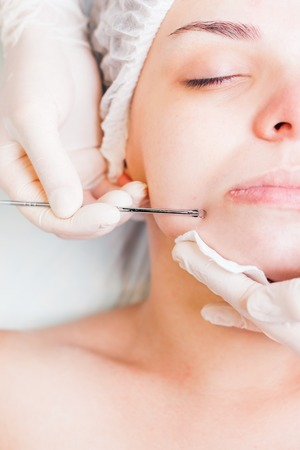 aging skin: Cosmetologist at spa beauty salon doing acne treatment using mechanical instrument. Concept of medical treatment of rejuvenation and skincare