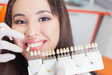 healthy teeth: Mujer asi�tica hermosa sonrisa con dientes blanqueamiento saludable. Concepto de cuidado dental. Conjunto de implantes con distintos tonos de tono Foto de archivo