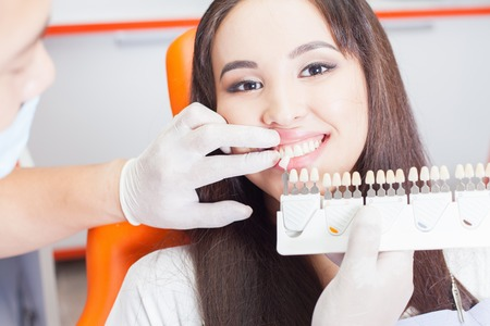 crowns: Beautiful asian woman smile with healthy teeth whitening. Dental care concept. Set of implants with various shades of tone Stock Photo
