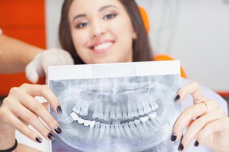 caries dental: Paciente niña hermosa celebración de imagen de rayos x de los dientes. Malos dientes afectados por caries, requieren sustitución por nuevos implantes, implantes