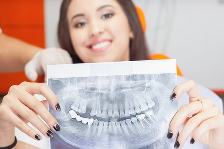 Patient beautiful girl holding x-ray picture of her teeth. Bad teeth affected by caries, require replacement by new implants, implant Stockfoto