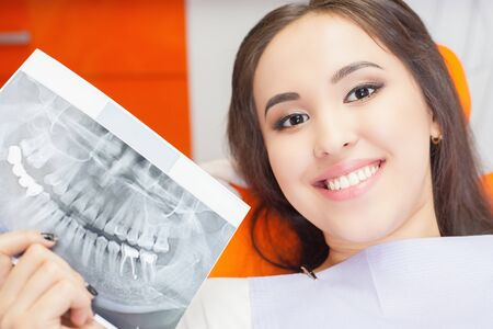 beautiful teeth: Patient beautiful girl holding x-ray picture of her teeth. Bad teeth affected by caries, require replacement by new implants, implant Stock Photo