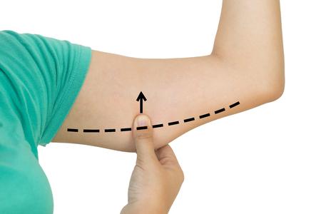 Oben geschlossen von der Frau, die Haut auf Oberarm mit den Zeichnungspfeilen - Celluliteabbaukonzept ergreift