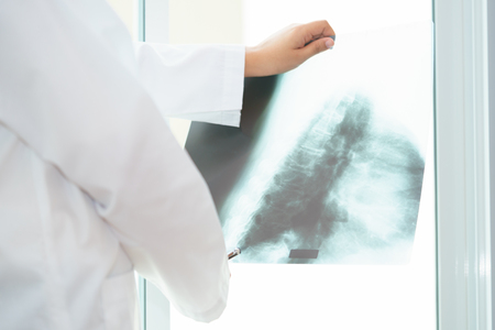 Female doctor examining about lungs with x-ray film - sick concept Zdjęcie Seryjne