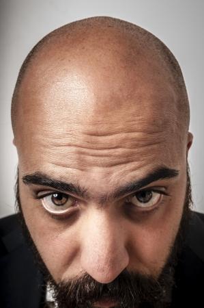 calvitie: �l�gant homme barbu montrant sa calvitie sur fond blanc Banque d'images