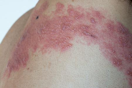sarpullido: Infección de herpes Foto de archivo