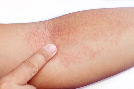 Close up of an women's inner forearm arm infested with Rash.