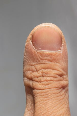 Close up of a thumb and finger nail with dry skin.