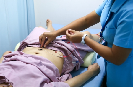Electrical stimulating acupuncture treatment by a nurse for an asian woman Stock Photo