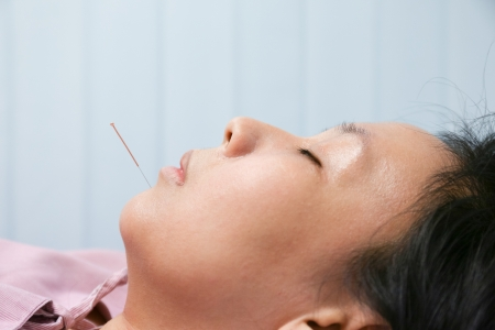 Electrical stimulating acupuncture treatment for an asian woman