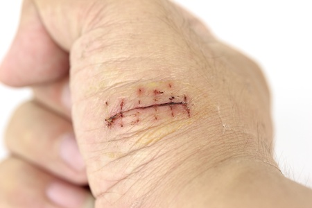 Close-up of a hand wound with stitches photo