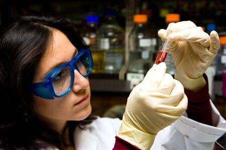 electrophoresis: Scientist is checking the color change of a reaction in a test tube Stock Photo