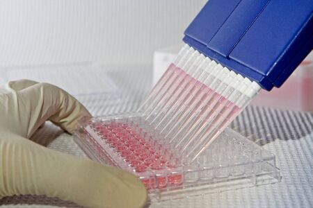 Scientist using blue multi-channel pipet for pipetting a 96 well plate with pink solution on white Stock Photo - 3131933