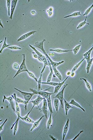 망 건강의 전경보기 벽, 핵 및 organelles를 보여주는 조직 문화에서 전립선 암 세포. 스톡 콘텐츠 - 8855495