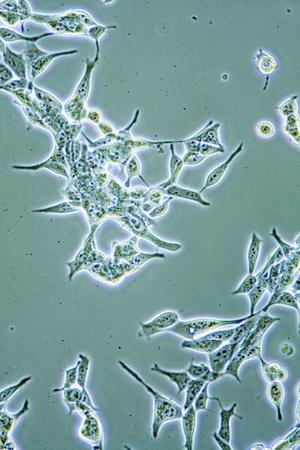 microscopisch: Microscopisch beeld van mens gezondheid prostaat kankercellen in weefselkweek met muren, nucleus en organellen.