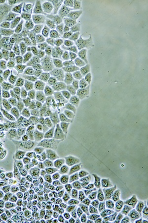 Microscope view of womens health Ductal Breast Cancer cells in tissue culture showing walls, nucleus and organelles. photo
