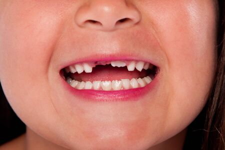 milk tooth: Happy open mouth with missing teeth exchanging milk tooth for adult tooth growing up, dental concept.