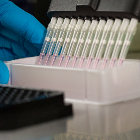 many pipette tips, hand with blue glove, pink liquid, black rack