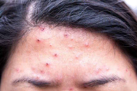 Chicken pox rash at woman forehead Stok Fotoğraf