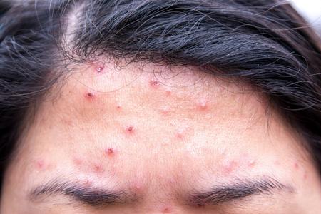 sarpullido: erupci�n de la varicela en la frente de la mujer Foto de archivo