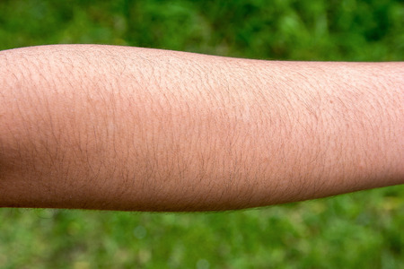 Female with hairy arm Standard-Bild
