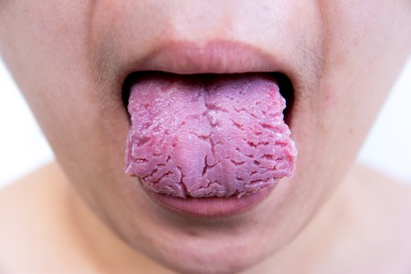 spot the difference: Bacterial infection disease tongue,The tongue is thrush.Tongue wound.Fissured tongue