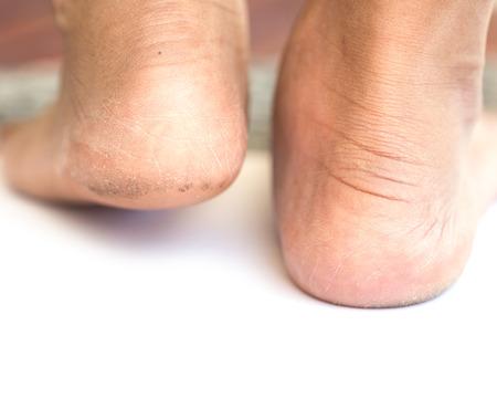 pieds sales: Close up sale talon isolé sur fond blanc Banque d'images