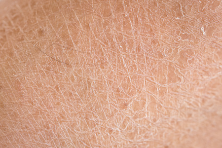 skin disease: Macro dry skin (ichthyosis) detail Stock Photo
