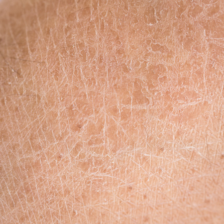 Macro dry skin (ichthyosis) detail Stock Photo