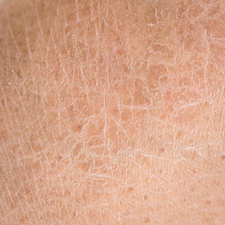 cerrar: Piel seca Macro (ictiosis) detalle