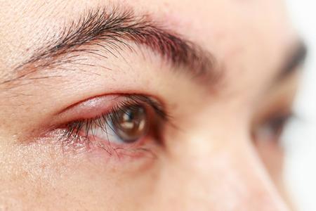 pus: Close up right upper eye lid abscess stye or hordeolum Stock Photo