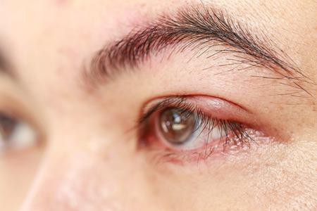 Close up left upper eye lid abscess stye or hordeolum