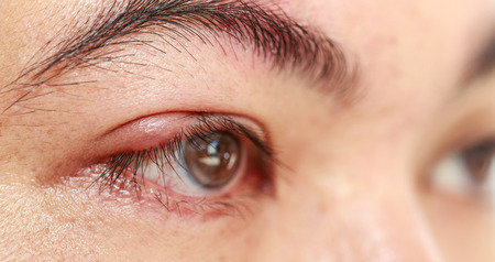 Close up right upper eye lid abscess