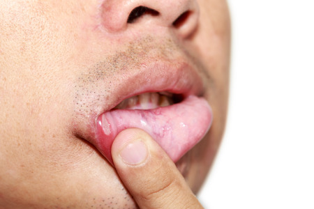 ulceration: Close up man with serious aphtha on lip