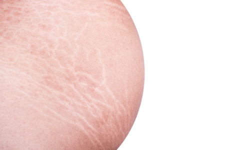 Macro stretch marks of skin on the belly isolated on white background Foto de archivo