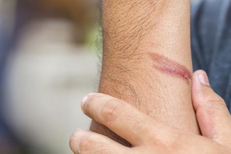 Nahaufnahme brennende Haut am Arm, Verletzung durch Feuer